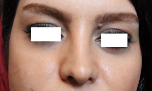 DSC00535  لیزر زوائد پوستی DSC00535