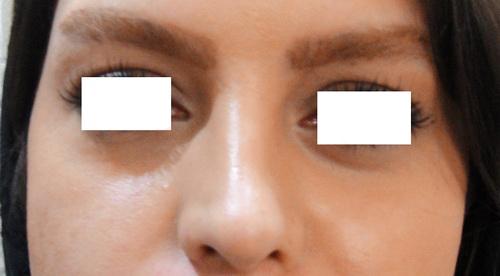DSC00689  لیزر زوائد پوستی DSC00689