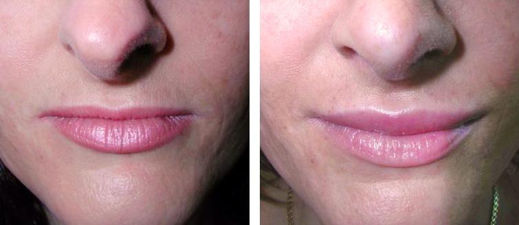 حجم دادن به لب ها before after lip 5a 1