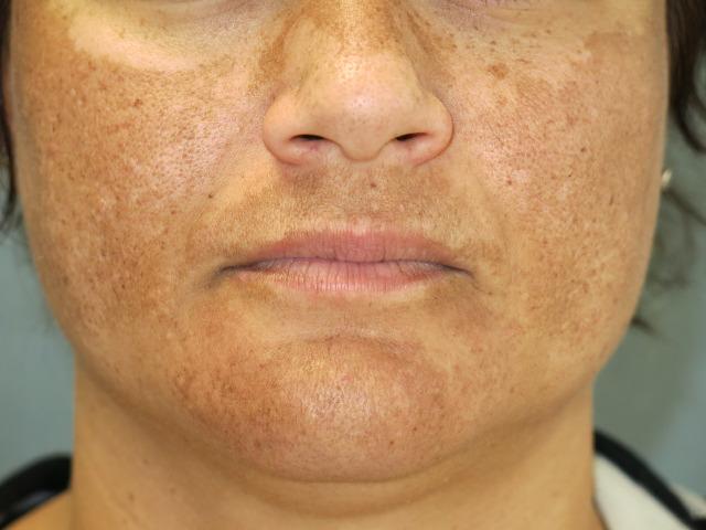 انواع لکهای پوستی melasma