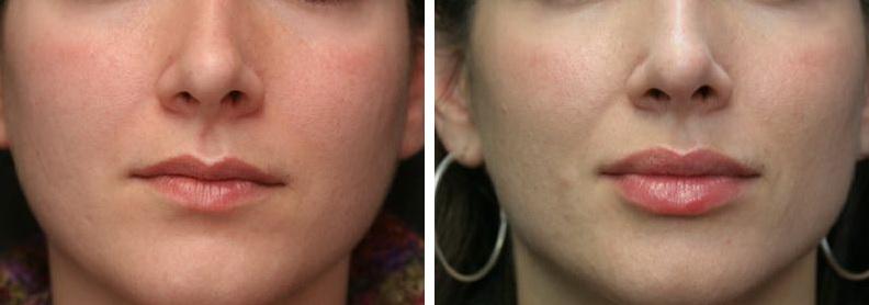 حجم دادن به لب ها patient 23257 lip augmentation and lip wrinkles before after 1