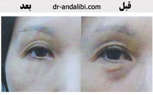 گالری عکس پلاسما درمانی (سلول درمانی) 31 300x188