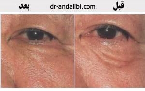 گالری عکس پلاسما درمانی (سلول درمانی) 51 300x188