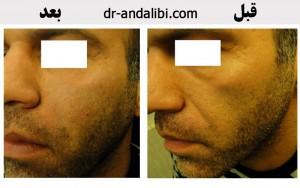 گالری عکس ژل injection gel 22 300x188