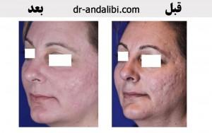 لیزر پوست  گالری عکس لیزر laser 1 300x188