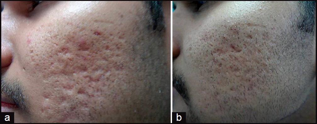 ساب سیژن ساب سیژن SUBCISION – درمان اسکار و جای جوش JCutanAesthetSurg 2014 7 1 18 129964 u5