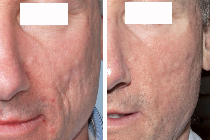 ساب سیژن ساب سیژن ساب سیژن SUBCISION – درمان اسکار و جای جوش acne scars laser treatment before and after 7617