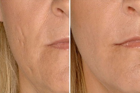 ساب سیژن ساب سیژن ساب سیژن SUBCISION – درمان اسکار و جای جوش dermal fillers scars