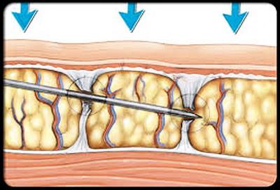 ساب سیژن ساب سیژن ساب سیژن SUBCISION – درمان اسکار و جای جوش images