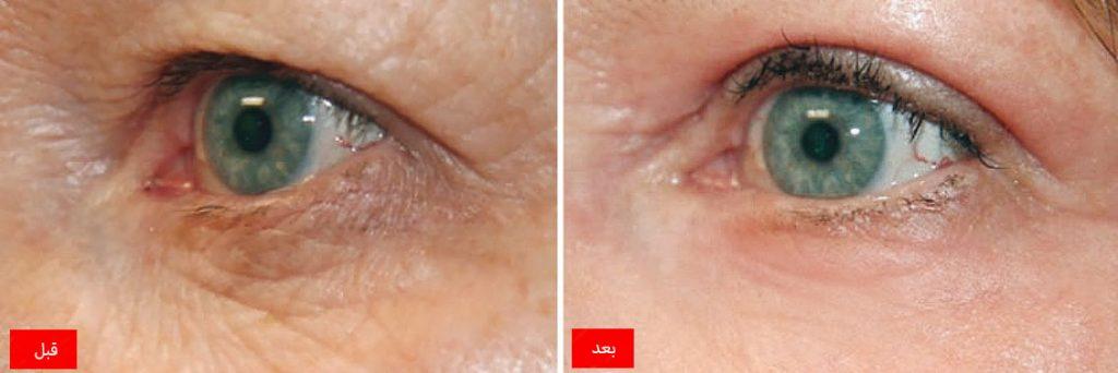 ناهمواری پوست ناهمواری پوست ترمیم ناهمواری پوست با پلکسر PLEXR neogen eyes before after