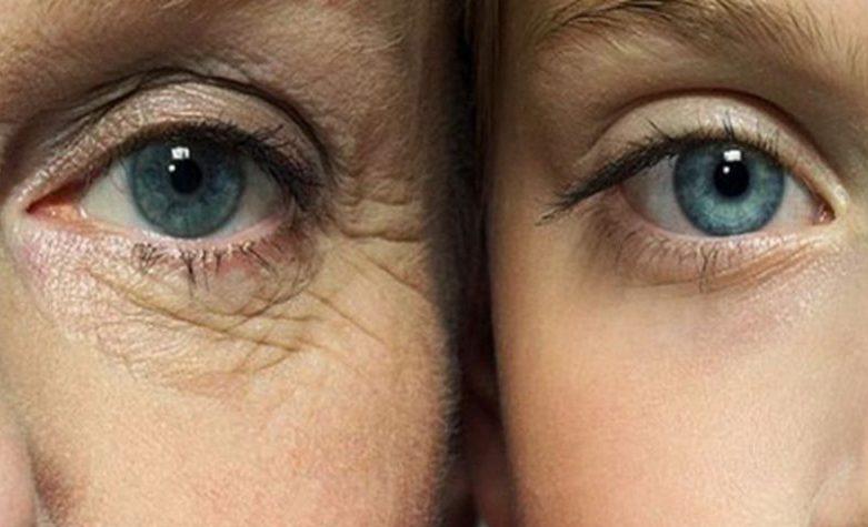 چروک زیر چشم رفع چروک زیر چشم How to remove under eye wrinkles e1519000750652  خانه How to remove under eye wrinkles e1519000750652