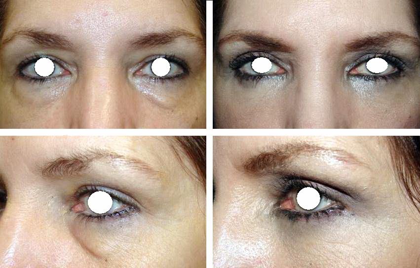 گودی زیر چشم گودی زیر چشم رفع گودی زیر چشم Massry before after lower blepharoplasty female