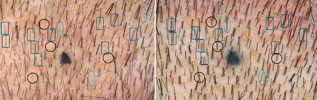 [object object] تقویت مو بالیزر  – لیزر سرد 2018 02 11 020011