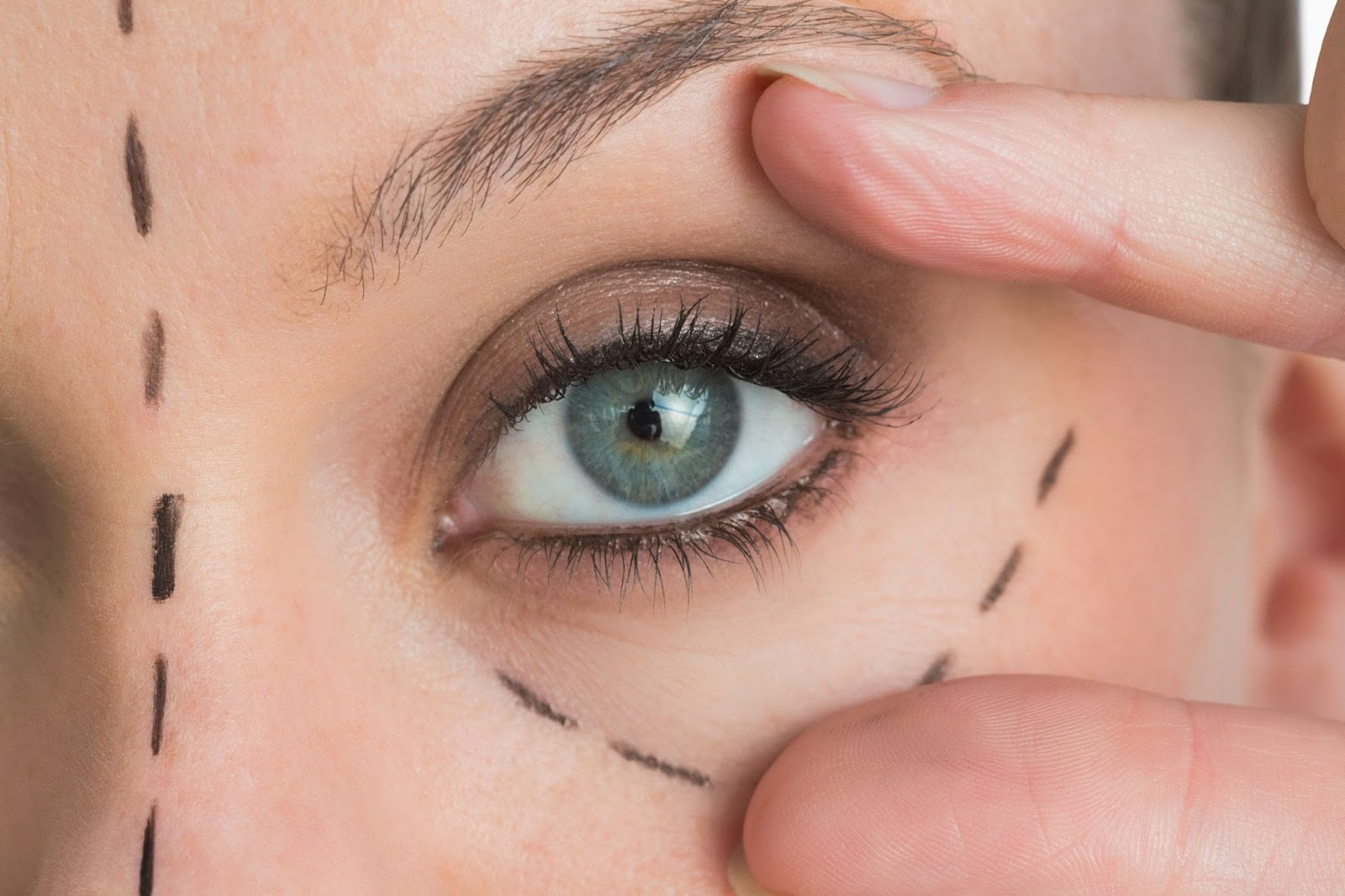 خانه Blepharoplasty surgery ageing eyes rejuvenation eyelid lift 3