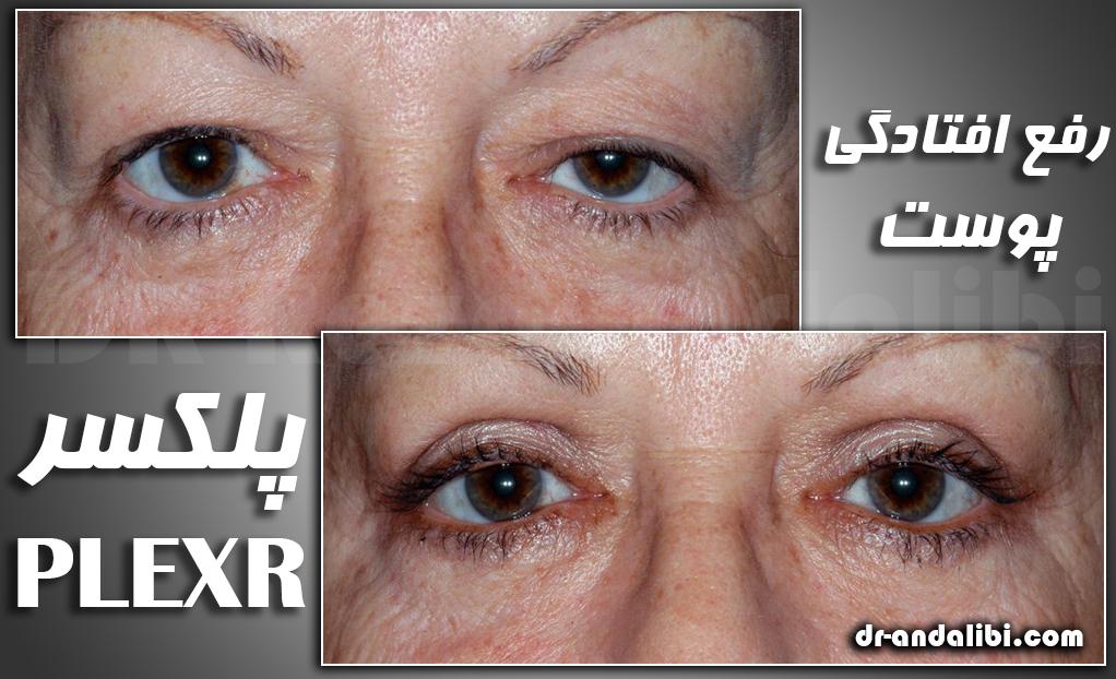 پلکسر رفع افتادگی پوست با پلکسر plexr            PLEXR